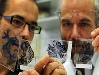 Болезнь Альцгеймера может быть заразной