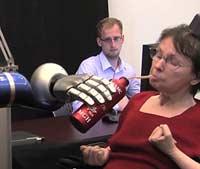 Кибер-руки каждому инвалиду