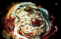 Найден 800-летний мозг ребёнка