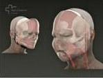 Благополучно завершена полная пересадка лица