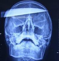 Подросток несколько часов ходил с ножом проткнутым через всю голову