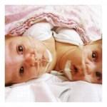В Индии прошла операция по разделению сиамских близнецов