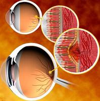 Открыт ген слепоты