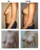 Маммопластика  пластика груди